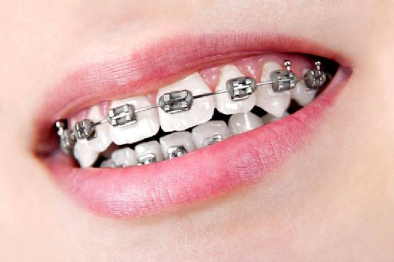 Dental braces - a common orthodontic procedure