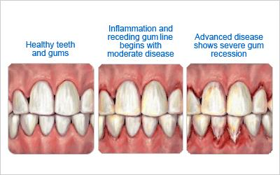 Example of gum disease treated by a periodontist.