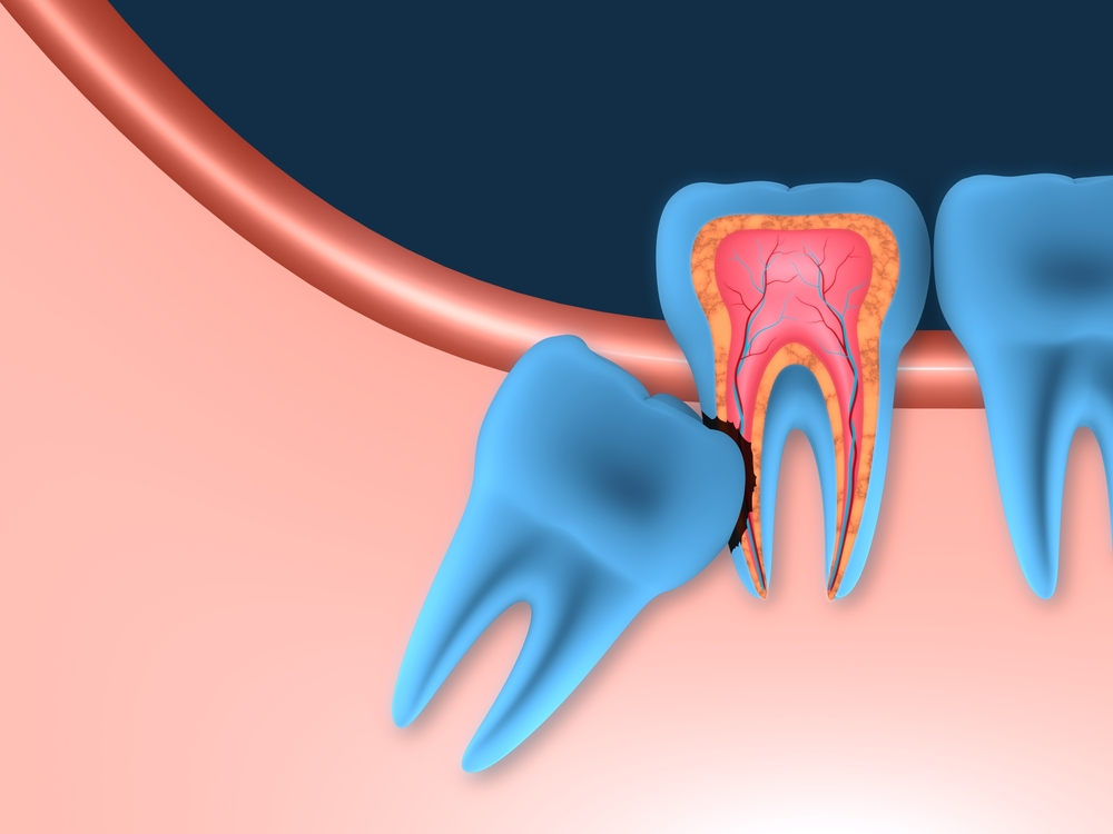 how to make your wisdom teeth grow in faster
