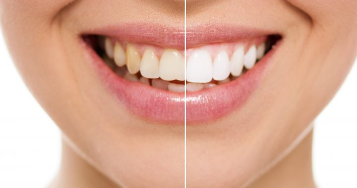 Before and after a cosmetic dentistry procedure