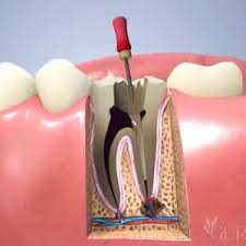 Example of a procedure done by an endodontist.