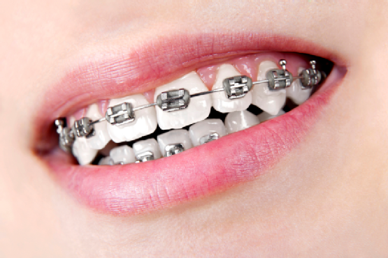 Dental braces - a common orthodontic procedure