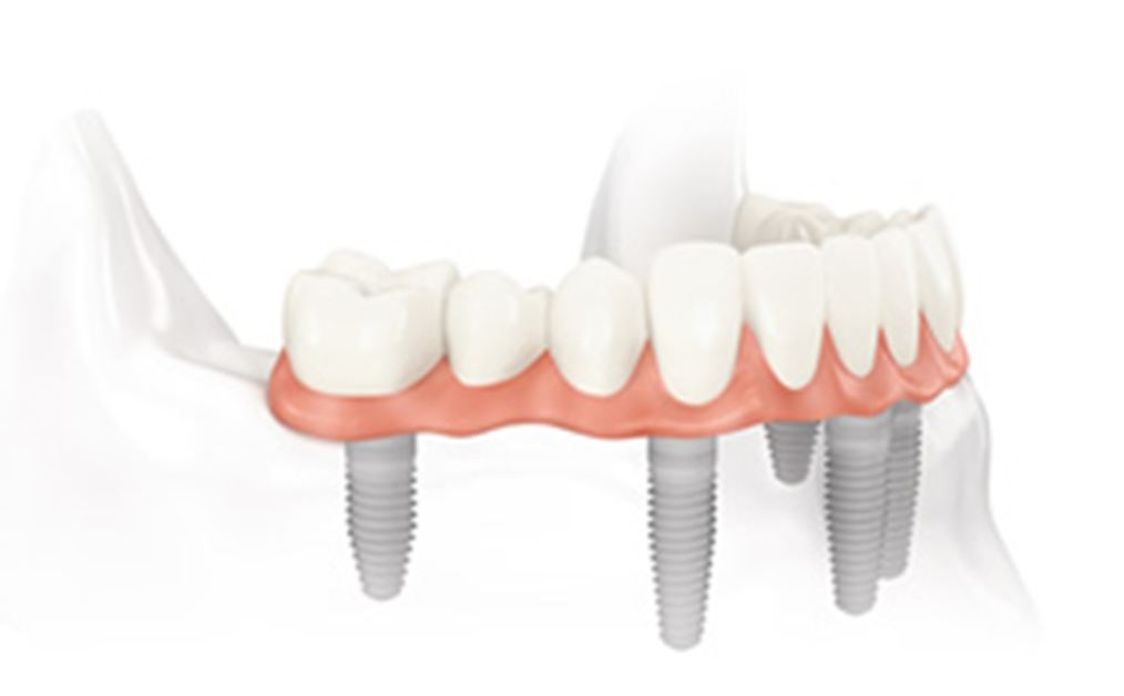 Example of a mouth restoration procedure for a better smile