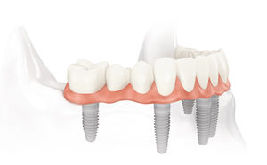 Example of dental implants