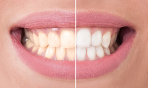 Teeth Whitening Vancouver WA