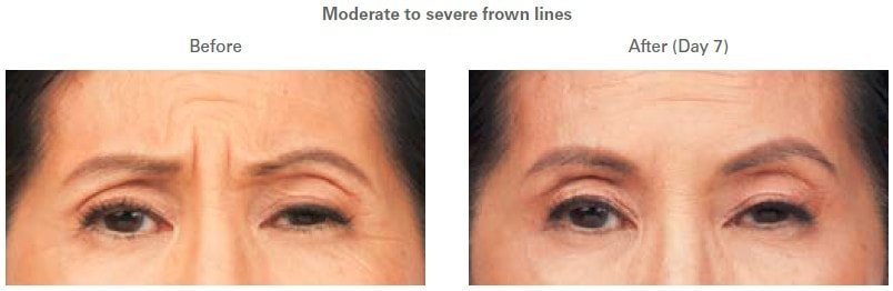 BOTOX treatment before and after photos