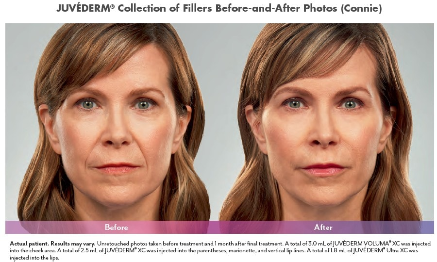 Juvederm treatment before and after photos