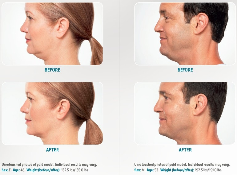 Kybella treatment before and after photos