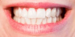 Signs of teeth grinding