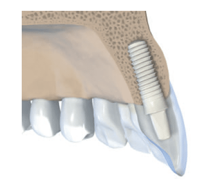 straumann white dental implants